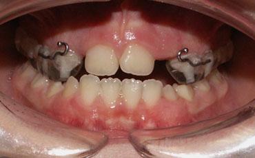 Quando è ora di mettere l'apparecchio per i denti?