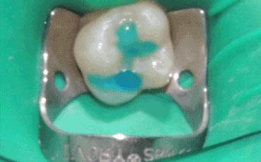 """Bimbi e denti: meno rischio di carie con la """"sigillatura dei solchi"""""""